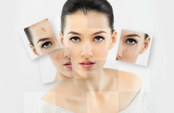 Best Home Remedies to Prevent Acne