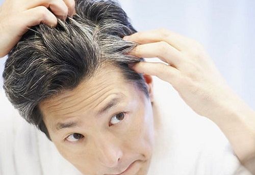 6 Home Remedies To Reverse Premature Greying of Hair