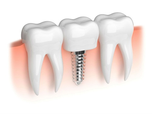 Why Dental Implants are Best Option for Your Missing Teeth?