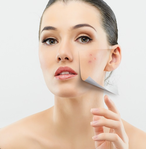 Pingback:How To Get Rid of Acne Scars | Cosmetic Creams