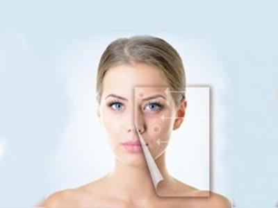 Acne Myths: 9 Myths about Acne & Facts