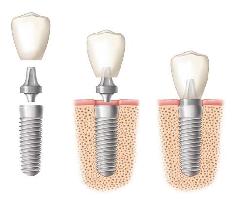 1.dental