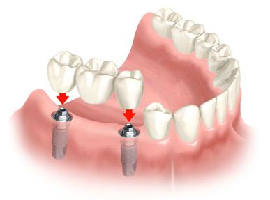 3.denta
