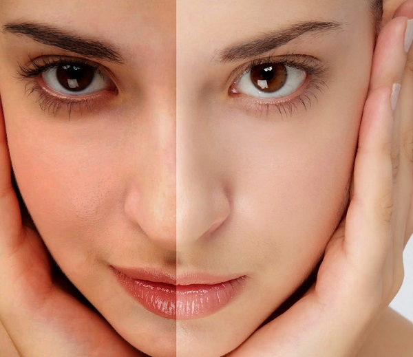 Home Remedies to make Your Skin 1-2 Tone Fairer