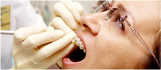 Who are Orthodontists and What does an Orthodontist do?