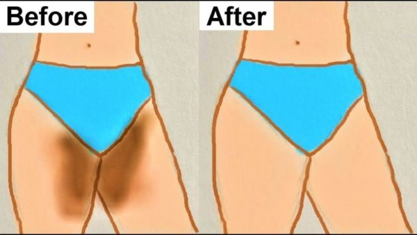 Natural Ways to Get Rid Of Inner Dark Thighs